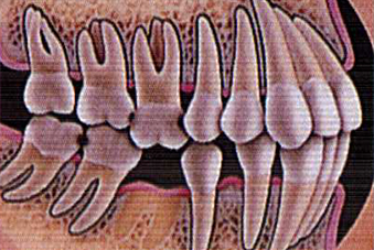 When a tooth is not replaced, the remaining teeth can drift out of position