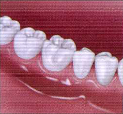 teethcln-2