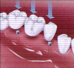 teethcln-1