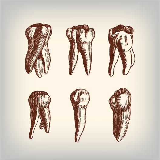 A History of False Teeth - Nicollet Station Dental