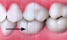 crack widens when teeth bite down